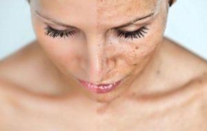 Čišćenje lica Ivela